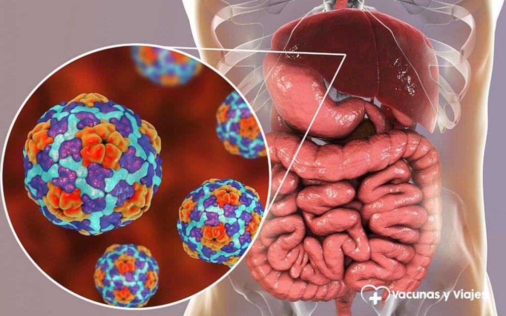 Enfermedades por vía oral: fiebre tifoidea, hepatitis A