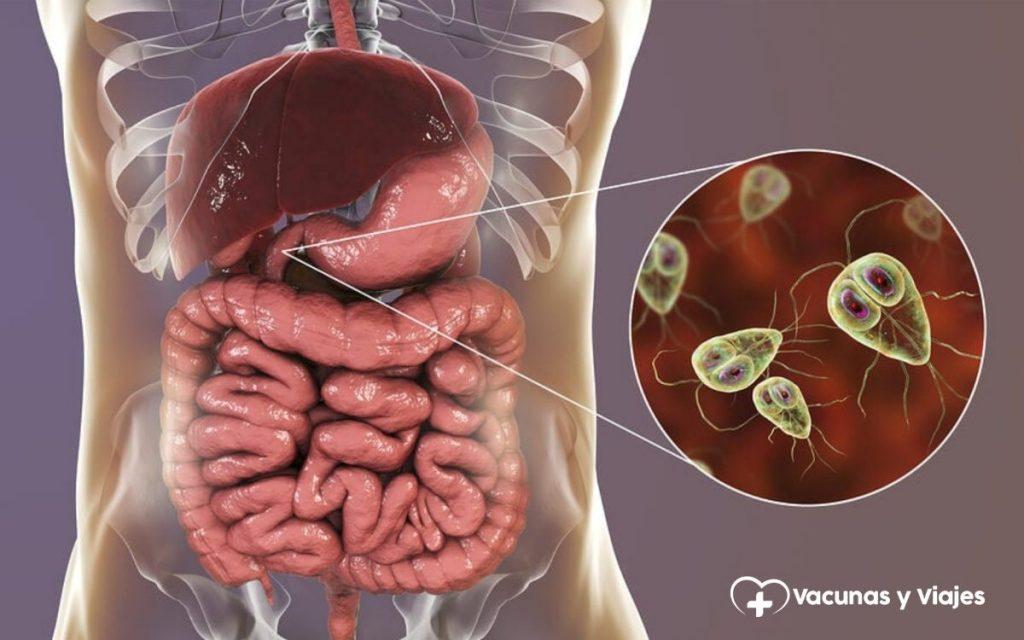 giardiaza este o boală infecțioasă